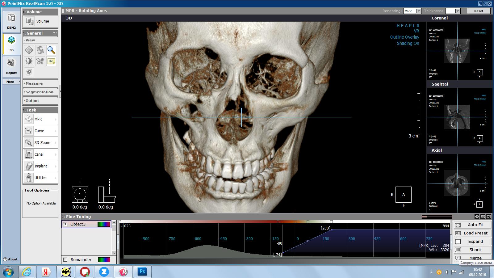 3D-диагностика в стоматологии