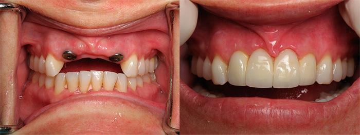 Фото имплантации зубов «до и после»
