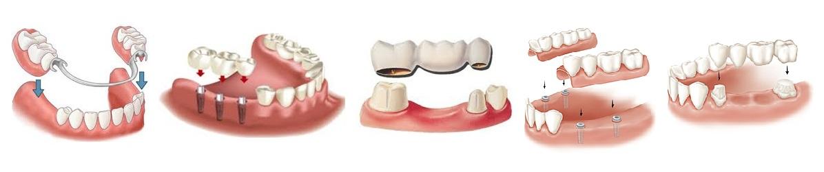 Дмс протезирование зубов