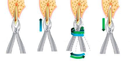 Схема удаления зуба: