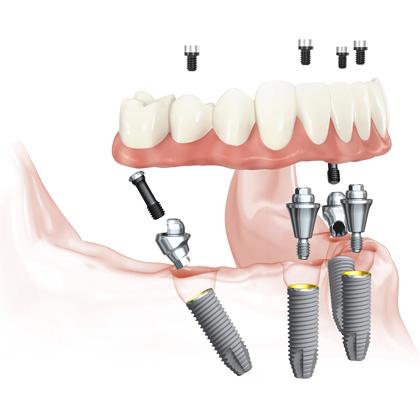 Восстановления полного зубного ряда на имплантах