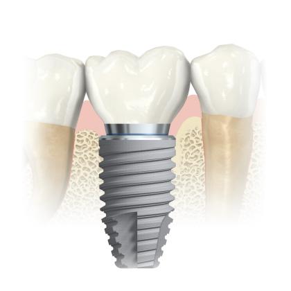 Имплантация вместо утерянного зуба