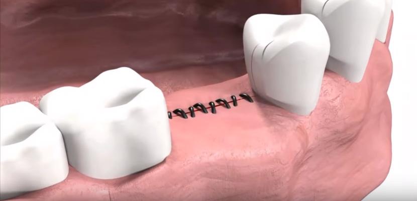 Установка специальной заглушки, либо одномоментная установка формирователя десны, в зависимости от конкретного случая