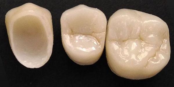 Имплантация на коронках диоксида циркония