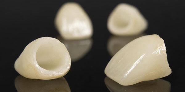 Имплантация на цельнокерамических коронках