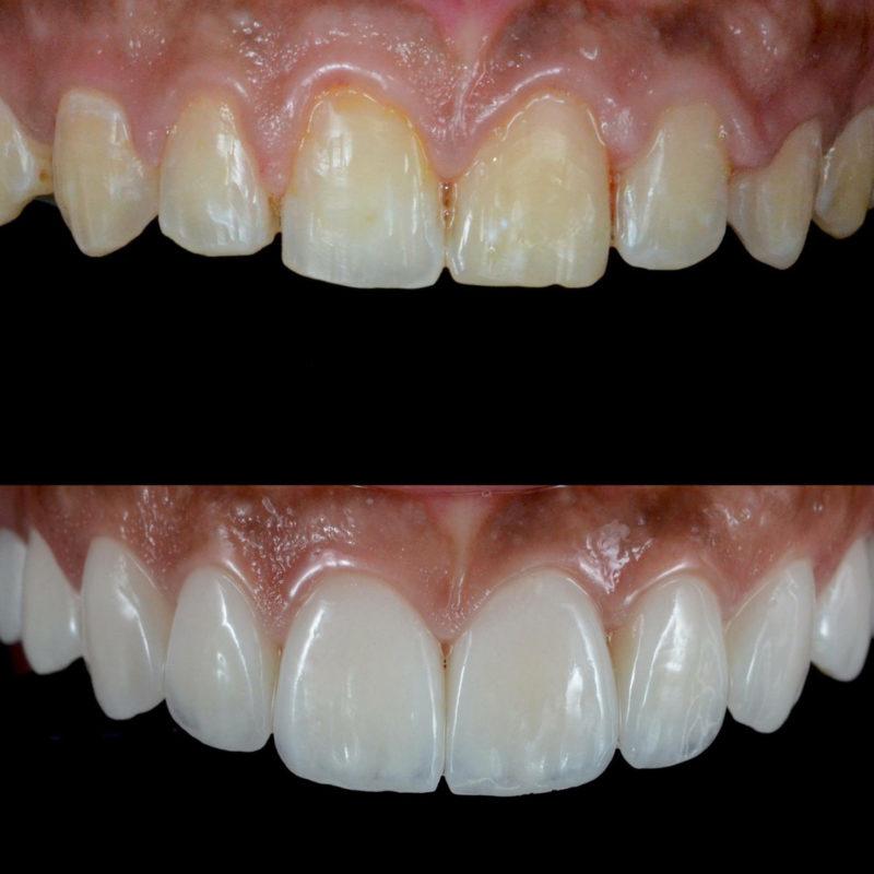 Виниры на зубы - фото виниров