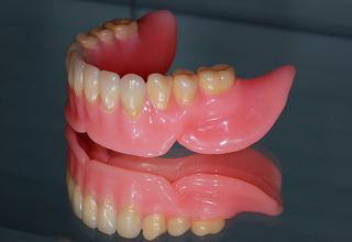 Фото протезирования зубов