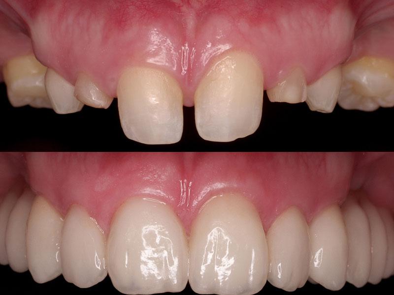 Коронки на зубы до и после
