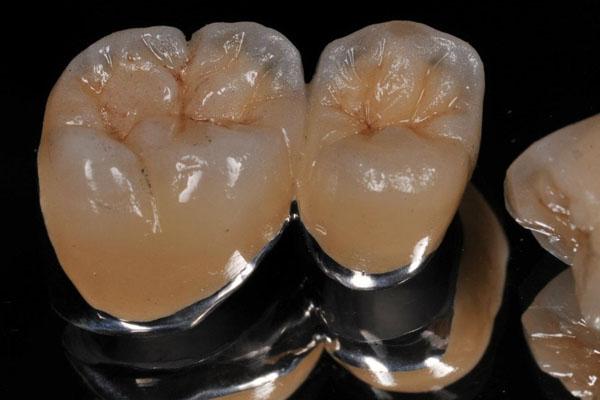 Металлокерамические коронки фото